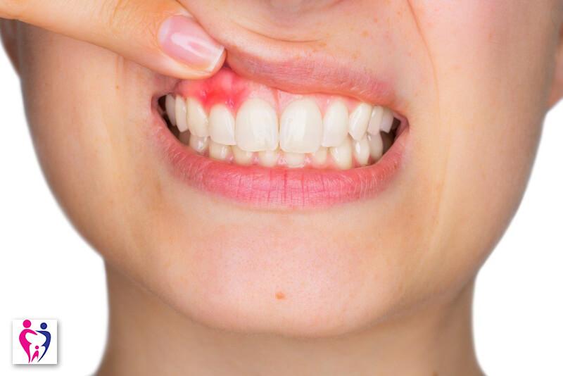 ce este parodontoza si cum o tratam clinica Prudent