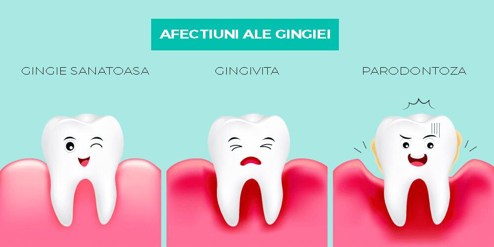 ce este parodontoza si cum o tratam